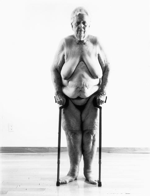 photographie d'une statue de vieille femme nue soutenue par des béquilles